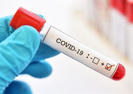 به دلیل پیچیدگی ماهیت ویروس، ساخت واکسن کرونا به آسانی میسر نیست